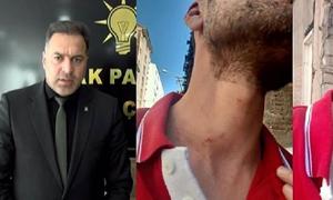 Tacizci AKP İlçe Başkanı kendisini savundu: İl Başkanı'nın yok mu?