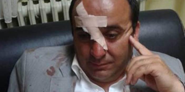 Yaylakent Belediye Başkanına saldırı!