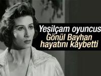 Gönül Bayhan hayatını kaybetti