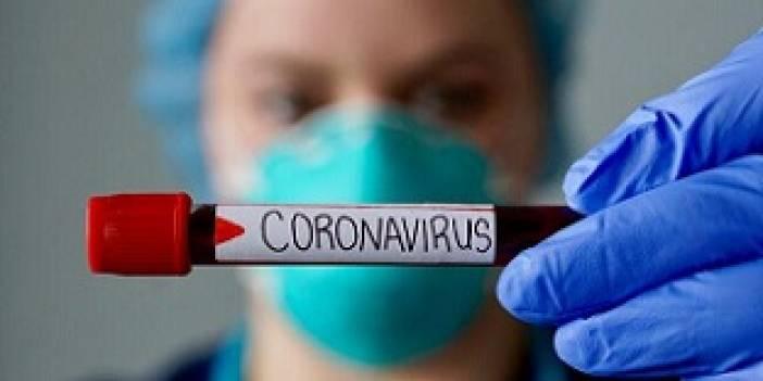 Çankırı'da dün itibariyle Coronavirüslü vaka sayısı 25!